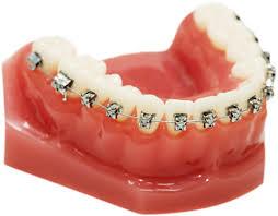 Ortodoncia con brackets metálicos