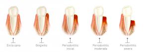 periodoncia, gingivitis, periodontitis