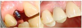implantes dentales daganzo recas villanueva ajalvir azuqueca